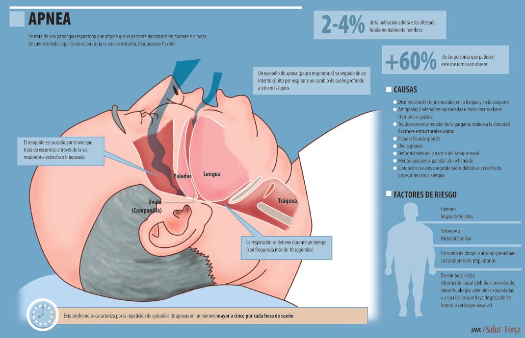 Centro Medico Herrera | Carne de conducir : La apnea de sueño afecta ...